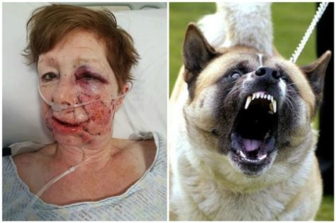 can dogs attacks oap left scarred by dangerous akita says she can no longer look at savaged