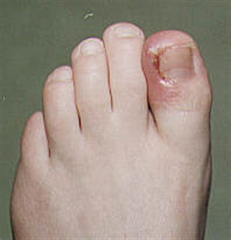 infected toenail bed infected toenail things you should know about it