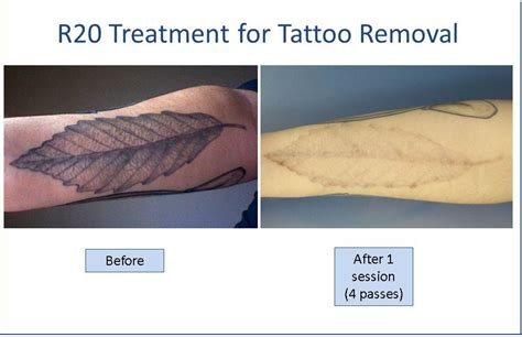 r20 tattoo removal before and after removal before and after removal how to s