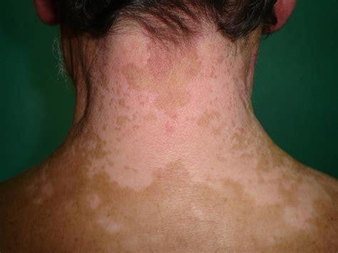 vitiligo images patterns of depigmentation in vitiligo vitiligo pictures