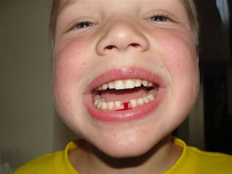 losing teeth quotes about losing teeth quotesgram