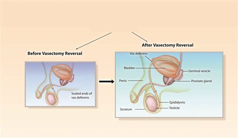 microsurgical vasectomy reversal
