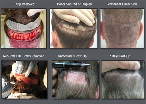 what is the cost of neografting the hair line neograft fue hair transplant procedure overview for
