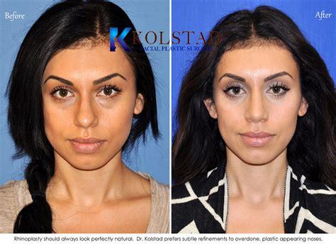 black doll laser before and after ethnic rhinoplasty san dieog 200 dr kolstad san diego