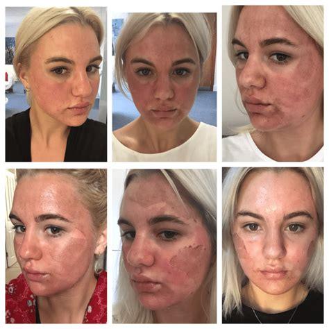 Paket Chemical Soft Peel Acne ellie s peel diary illuminate skin clinics