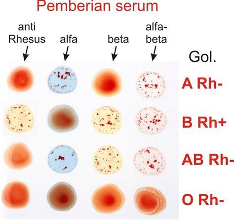 Serum Golongan Darah praktikum golongan darah abo dan rhesus praktikum