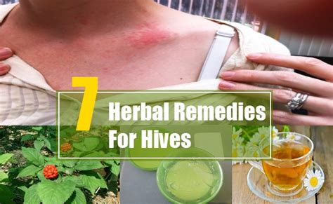 7 herbal remedies for hives search home remedy