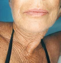 older womens turkey necks essenskin for turkey necks and 60 somethings truth in aging