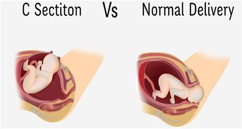 C Section Birth Vs by Why You Should Never Opt For A C Section And The Dangers