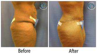 tummy tuck photos the centre for cosmetic surgery