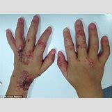 Herpes Rash Hand | 634 x 476 jpeg 27kB