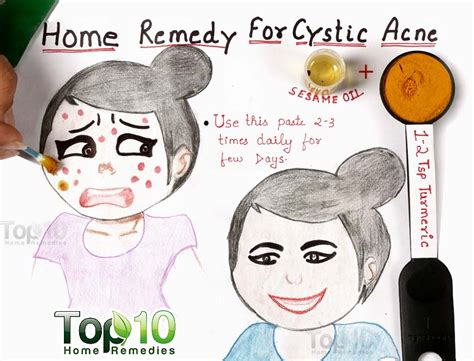 cystic acne how to get rid of acne brown hairs