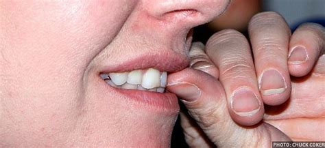 chewing nails remedies for nail biting infobarrel