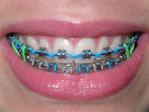 colors for braces chain colors for braces images