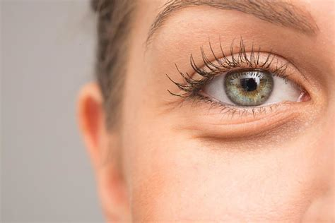 4 Things That Cause Your Eye Circles And Puffiness by What Causes Circles Reader S Digest