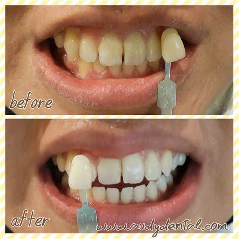 Berapa Untuk Pemutihan Gigi pemutihan gigi bleaching audy dental 3 audy dental