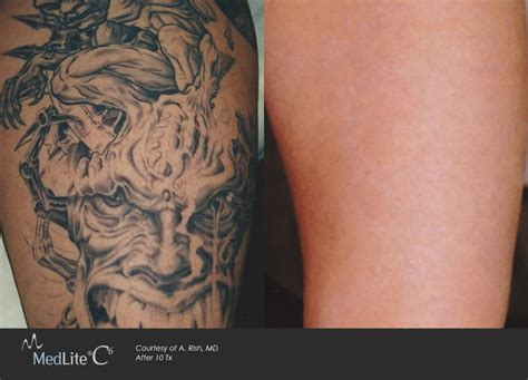 tattoo prices el paso tx 40 best laser tattoo removal images on pinterest laser