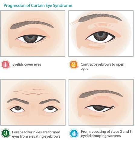 curtain over vision curtain eye syndrome clinic eye surgery dream plastic