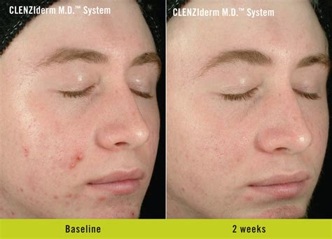 Paket Chemical Soft Peel Acne bay center for cosmetic laser surgery 187