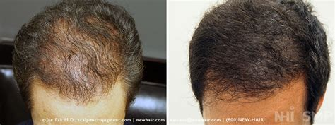Pics Of Scalp Micropigmentation On People With Long Hair | 429 too many requests
