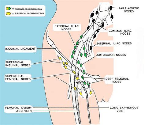 lymph nodes swollen groin lymph nodes www imgkid the image kid