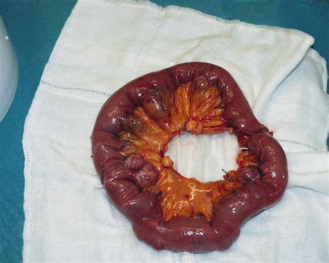 Large Stool Causes Bleeding by Bleeding Small Bowel Diverticulosis Hamid And Khattak
