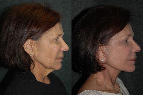 celebrity neck lift celebrity neck lift photos micro neck lifts neck lift