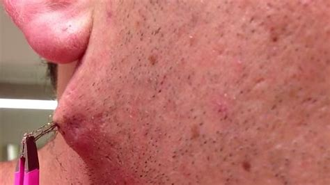 ingrown hair on stomach the longest ingrown hair will make your stomach churn