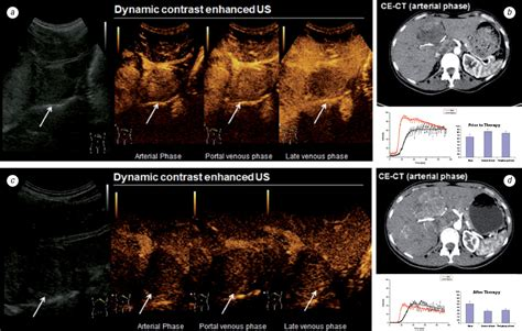 Contrast Enhanced Ultrasound And Liver Imaging Review Of The Literature by Contrast Enhanced Ultrasound Monitoring Of Perfusion Changes In Hepatic Neuroendocrine