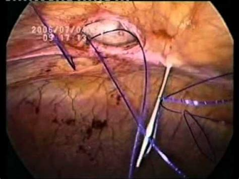 robotic surgery for abdominal wall hernia repair a manual of best practices books laparoscopic mayo s repair with meshplasty for ventral