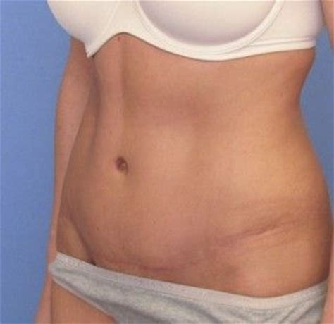 can i have a tummy tuck after c section this is a slightly wide post tummy tuck belly button but