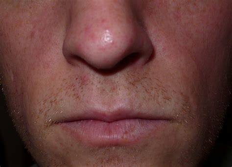 white spot on nose i small spots some with white heads like tiny pimples spread on my pelvi