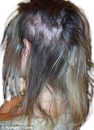 single bond extensions to cover bald spots dangers of hair extensions blinding headaches to bleeding