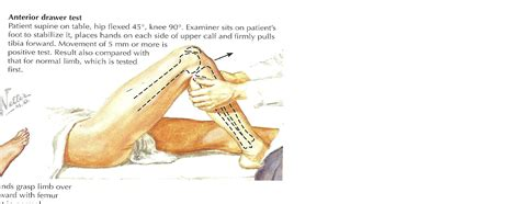 Anterior Drawer Test Knee by 301 Moved Permanently