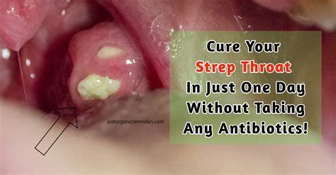 images of strep throat cure your strep throat in just one day without taking any