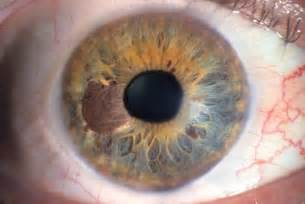 iris eye color my has a brown spot developing in the coloured section