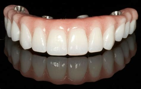 dentures in a day vancouver implant dentist chrysalis dental