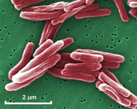 tuberculosis bacteria diagram image gallery mycobacterium tuberculosis