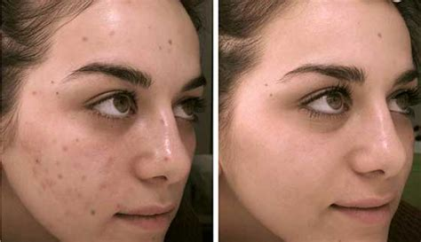 Acnes Spot 3 effective methods to remove acne scars spots and pimples glowpink