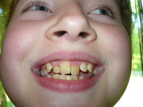 How To Fix Crooked Teeth At Home by How To Fix Crooked Teeth At Home Find The Answer To Can Veneers Fix Crooked Teeth Straighten