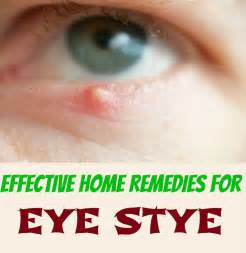 home remedies for stye kitchen ideas archives page 5 of 92 bukit