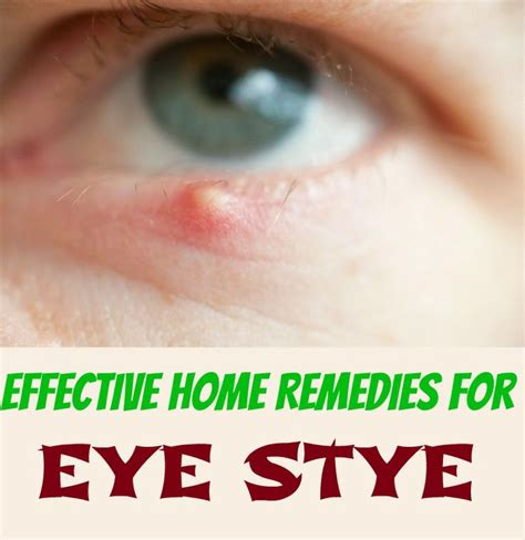 20 effective home remedies for eye stye