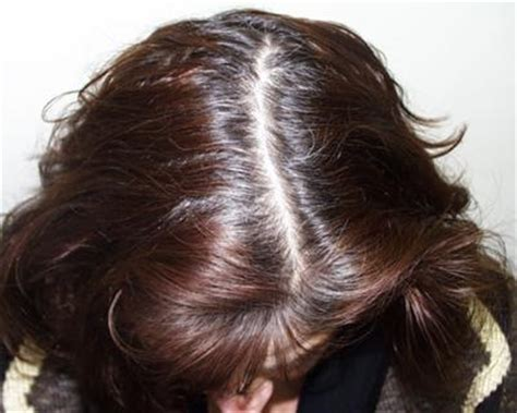 hairstyles to cover thinning hair on scalp thinning crown women www pixshark com images galleries
