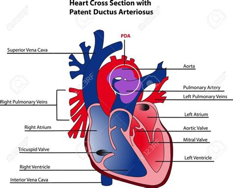 cross section of a heart 25 best ideas about ductus arteriosus on pinterest