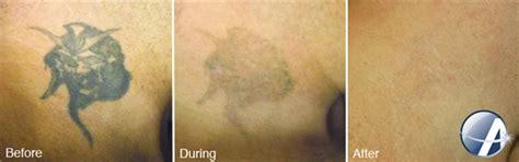 tattoo removal in dallas tx laser removal dallas tx christine brown md