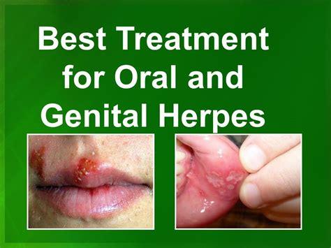 best herpes treatment best herpes cure treatment in atlanta ga