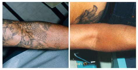 tattoo removal black skin laser tattoo removal in walnut creek ca