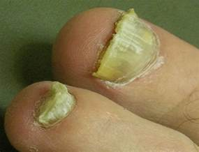 thick toenails home remedy think toenails treatment causes home remedies pictures