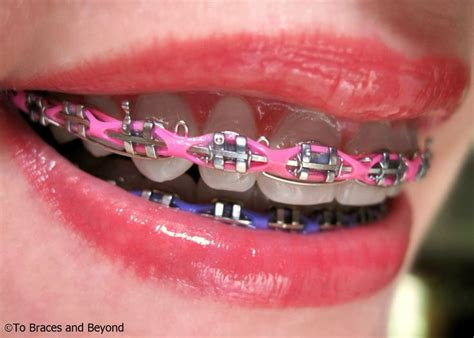 braces colors for braces