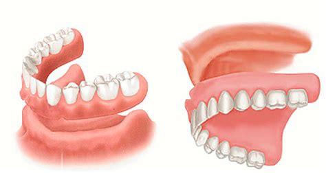 dentures in a day same day dentures ac dental of hackensack paramusac